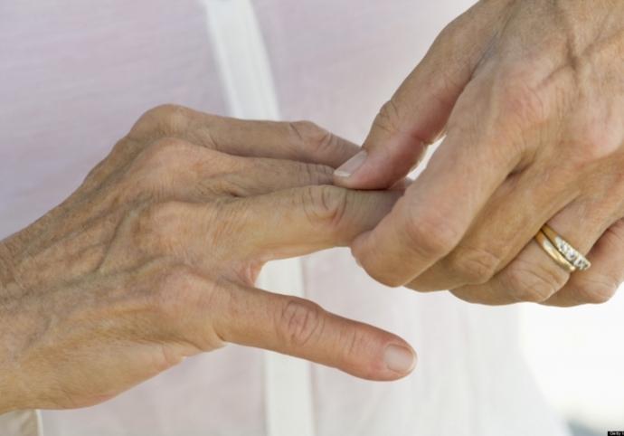 Encuentran nueva célula para tratar artritis reumatoide