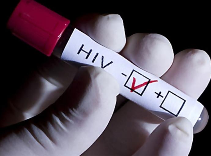 Disminuye la financiación para combatir VIH