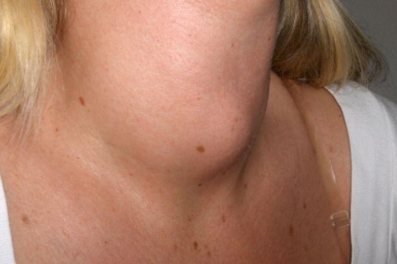 Enfermedades tiroideas afectan más a mujeres que a hombres