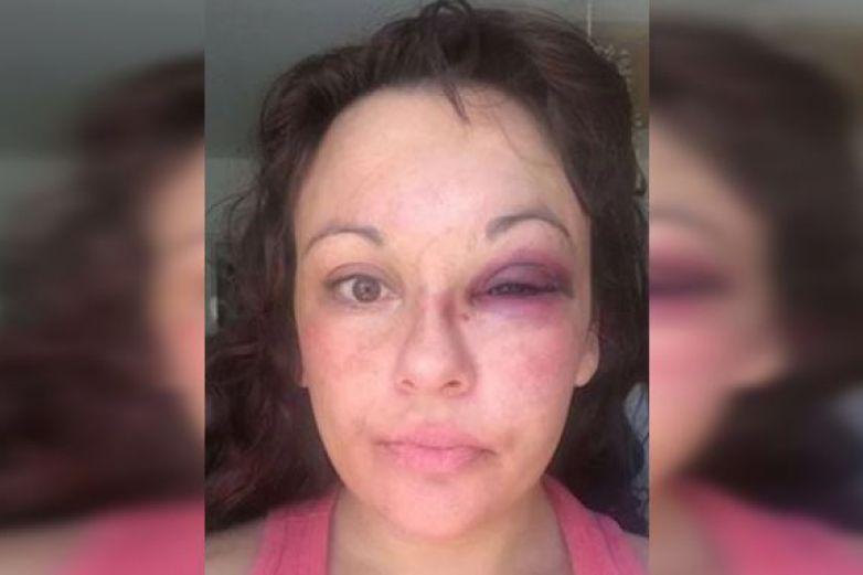 Por perder amigos en 'Face', propina golpiza a su novia con una pesa