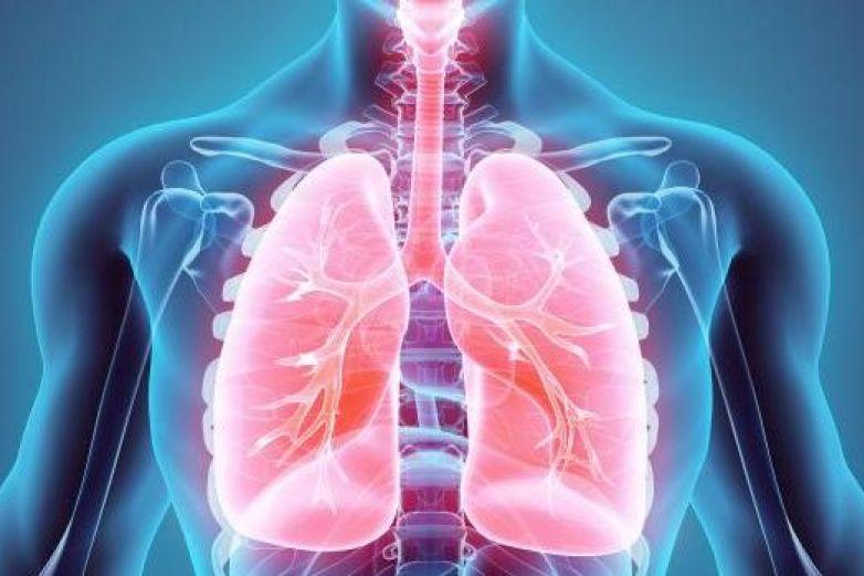 Cáncer de pulmón cobra 21 vidas diarias en México