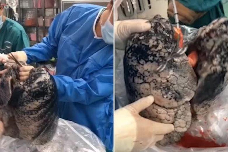 Muestran los pulmones de un hombre que fumó durante 30 años