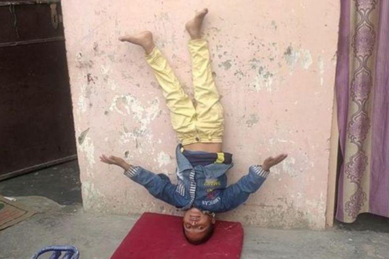 Niño nacido con 'cola' es venerado como un 'dios mono'