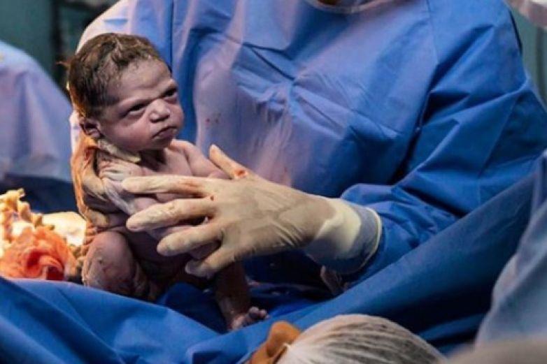 Isabela, la bebé que nació con cara de meme y que se volvió viral