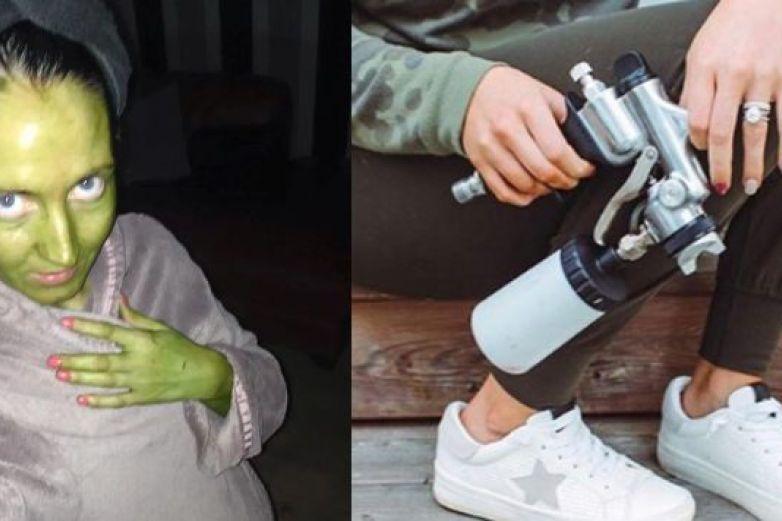 Mujer se vuelve verde tras untarse un bronceador caducado