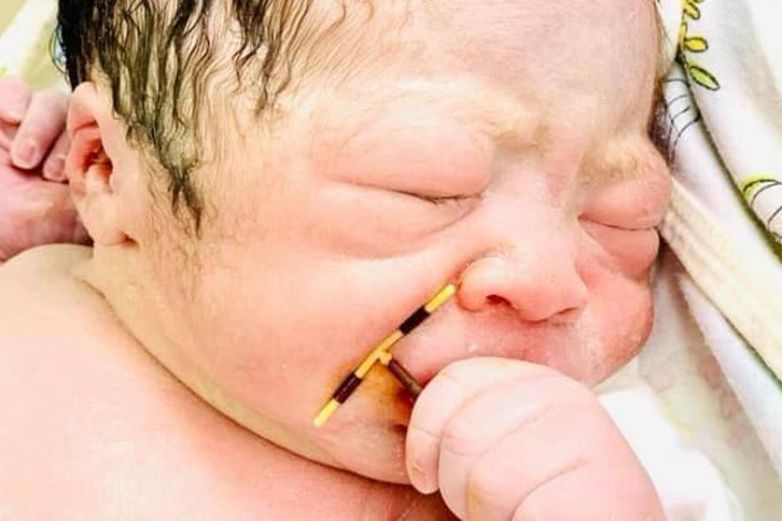 ¡Insólito! Nace bebé con DIU de su mamá en la mano
