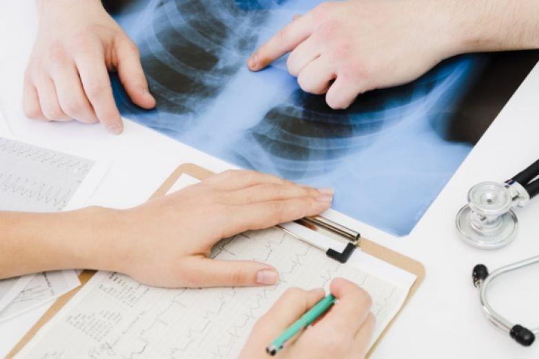 Terapia para fibrosis pulmonar idiopática mejora calidad de vida de los paciente