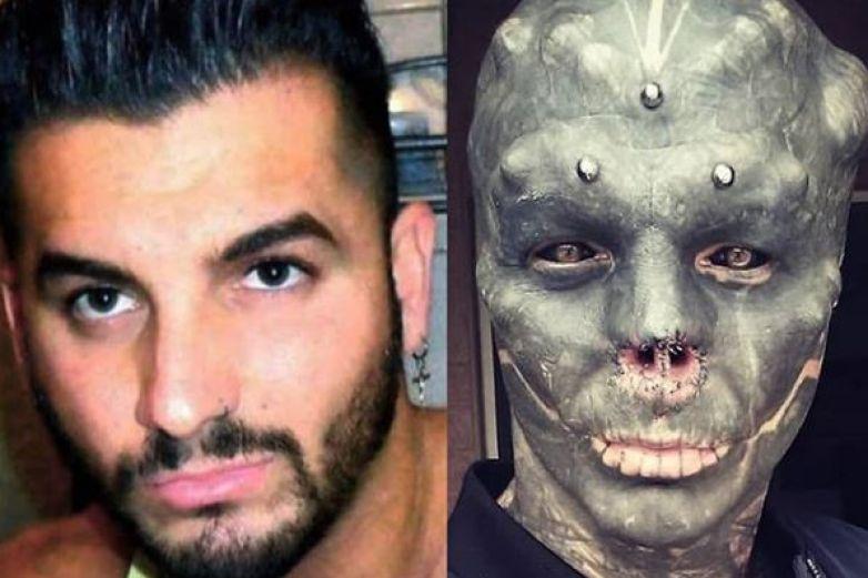 Hombre se quita la nariz para cumplir su sueño; convertirse en un alienígena