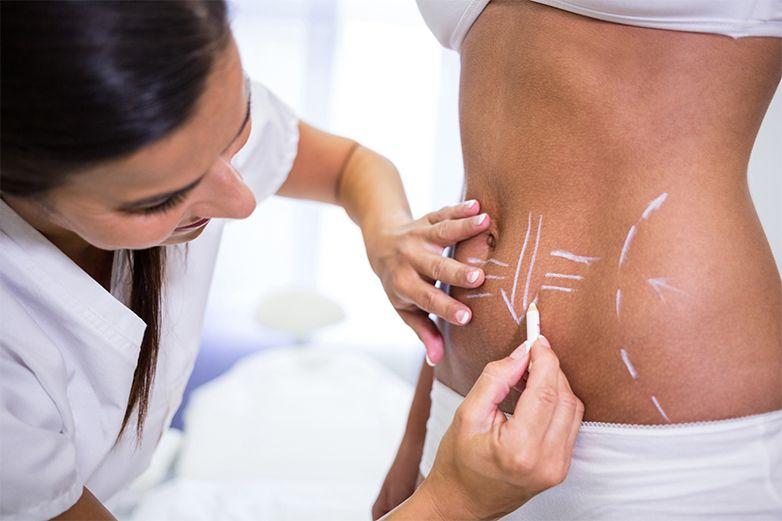 Estos son los riesgos de someterse a una liposucción