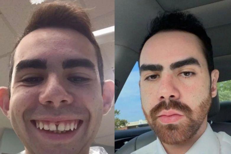 Se somete a 9 cirugías para cambiar su rostro